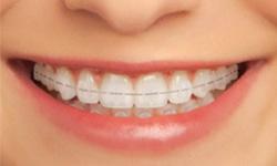 Aparelho Ortodontico Safira Vue Odonto