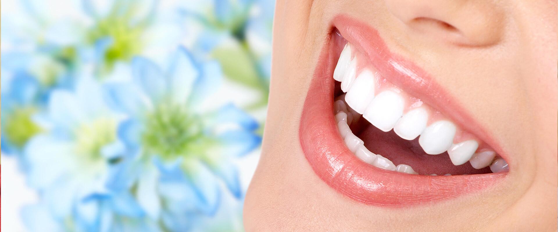 Bisnaga Para Clareamento Vue Odonto