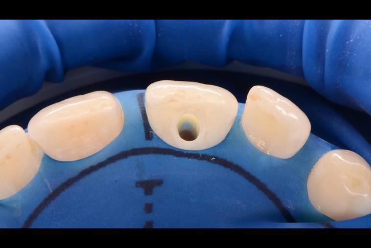 Canal Do Dente Doendo Vue Odonto
