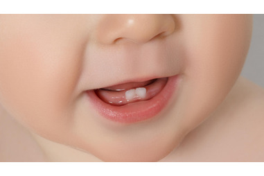 Canal Em Dente De Leite Vue Odonto