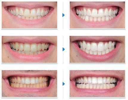 Clareamento A Laser Dental Vue Odonto