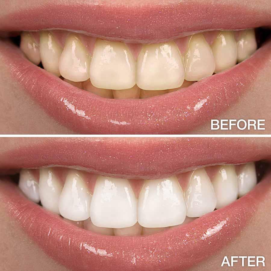 Clareamento Dental A Laser Antes E Depois Vue Odonto