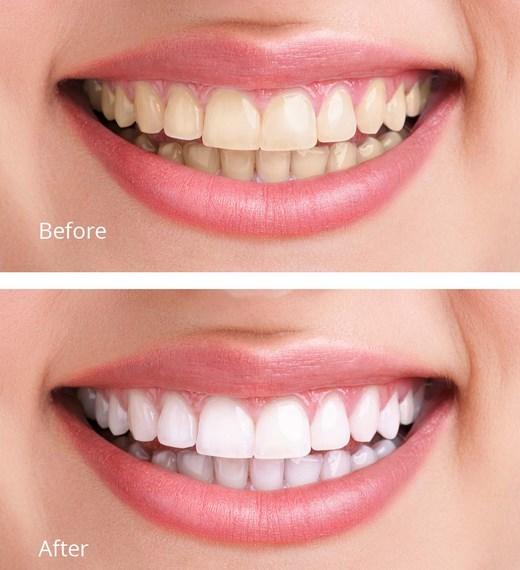 Clareamento Dental Antes E Depois Vue Odonto