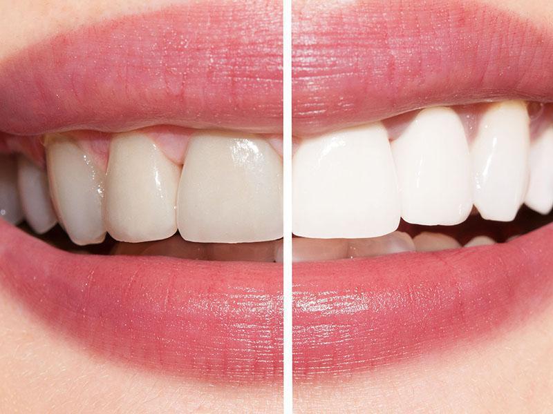 Clareamento Dental Caseiro Comprar Vue Odonto