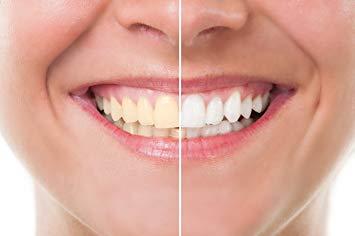 Clareamento Dental Caseiro Onde Comprar Vue Odonto