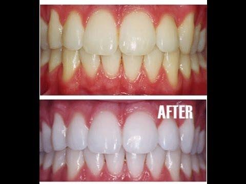 Clareamento Dental Com Bicarbonato Vue Odonto