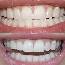 Clareamento Dental Com Moldeira Vue Odonto