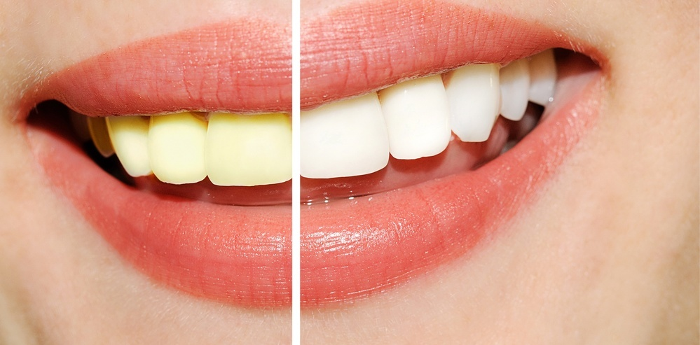Clareamento Dental Com Placa Vue Odonto