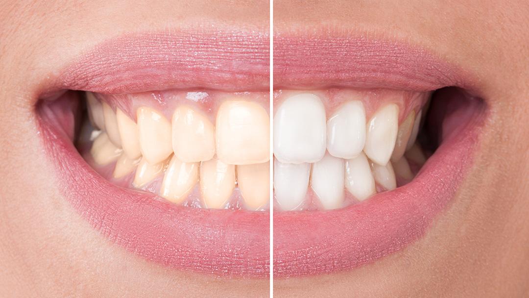 Clareamento Dental Como Fazer Vue Odonto