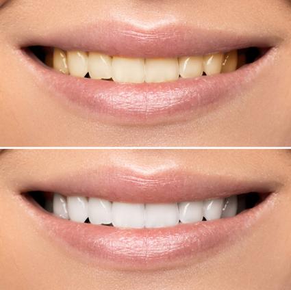 Clareamento Dental Tipos Vue Odonto