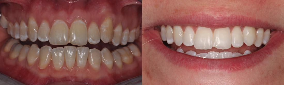 Clareamento Dentario Antes E Depois Vue Odonto