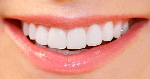 Clareamento Natural Dos Dentes Vue Odonto