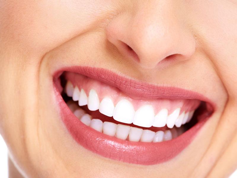 Clareamento Natural Para Os Dentes Vue Odonto