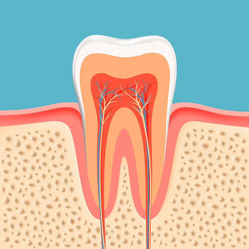 Dente Com Canal Doendo Vue Odonto