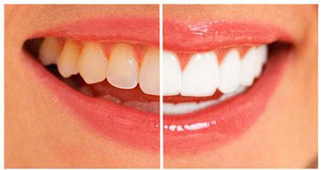 Dentes Amarelados Como Clarear Vue Odonto