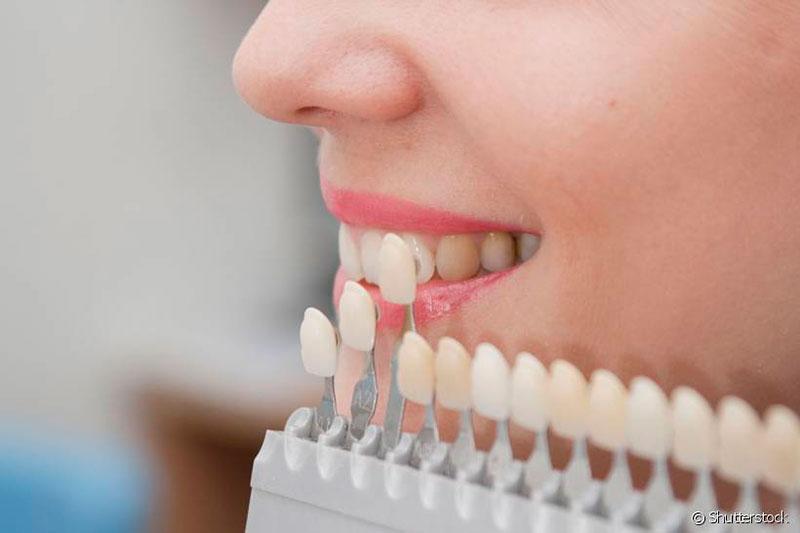 Dentes De Porcelana Quanto Custa Vue Odonto