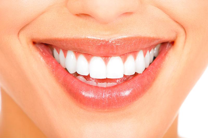 Dentista Clareamento Vue Odonto