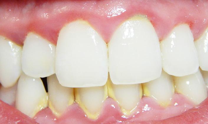 Quanto Custa Para Tirar Tartaro Dos Dentes Vue Odonto