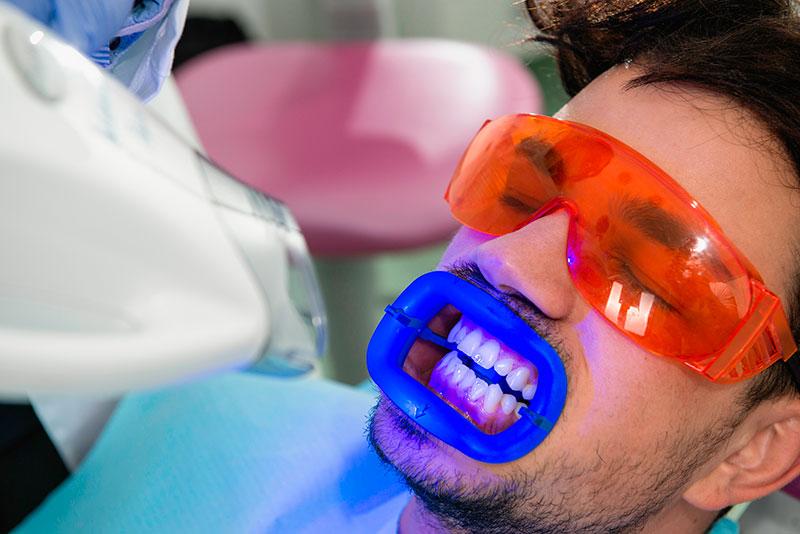 Tipos De Clareamento Dentario Vue Odonto
