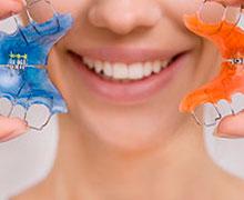 Aparelhos Dentários