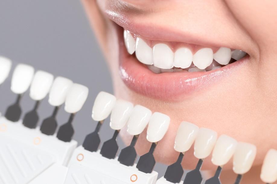 Clareamentos dentais