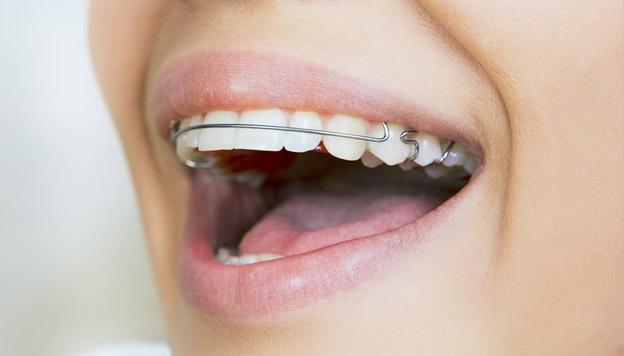 Alinhador de dentes