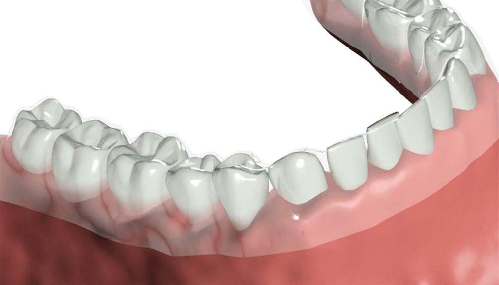 alinhadores ortodonticos invisiveis