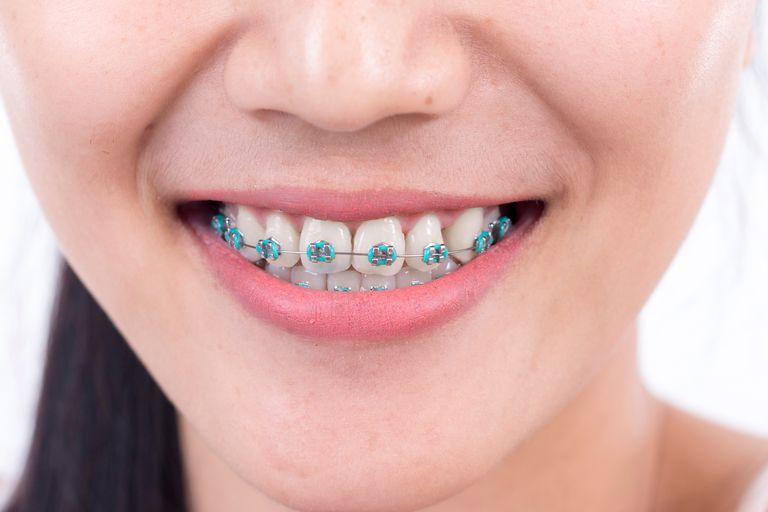 aparelho dos dentes