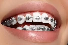 aparelho odontológico