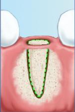 Cirurgia de enxerto