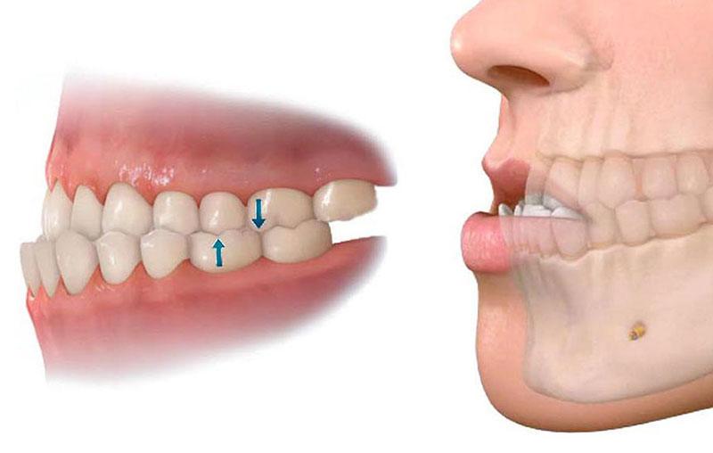 Saiba mais sobre a cirurgia ortognatica