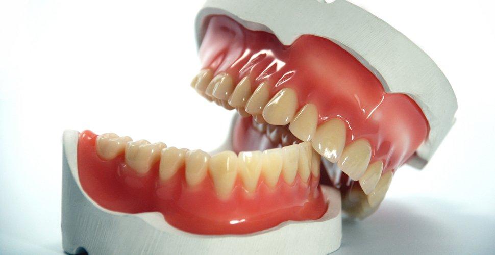 dental prótese