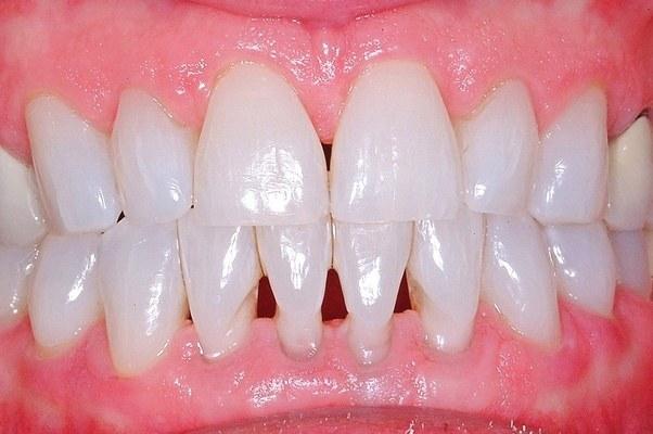 dente com mancha preta
