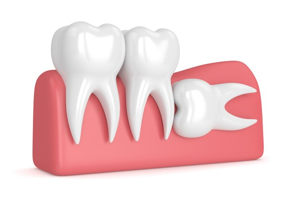 dente do siso dor