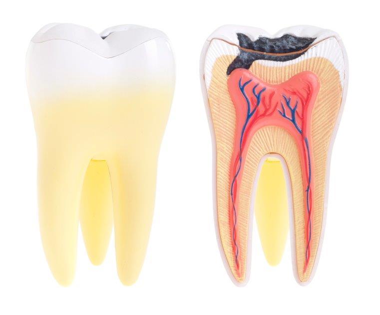 dente furado