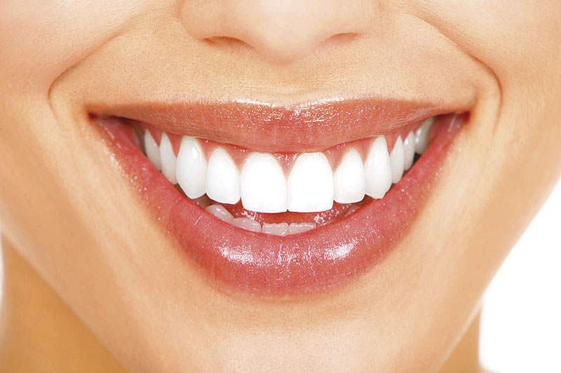 dentes de porcelana quanto custa