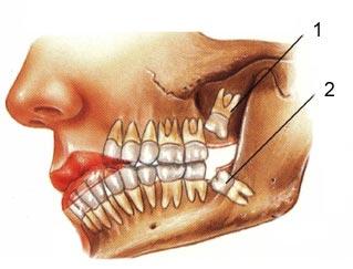 extrair dente siso inflamado