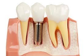 implante carga imediata