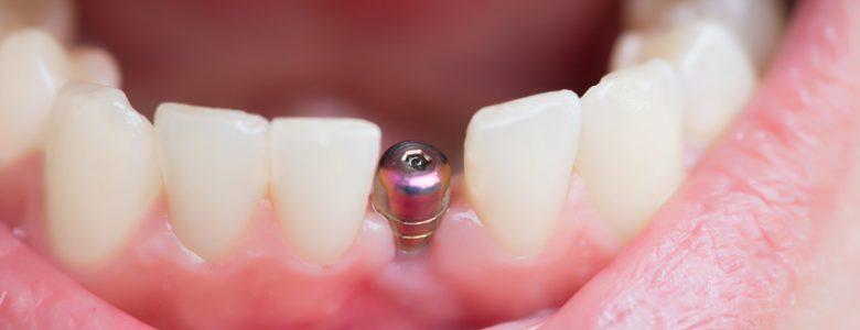 Conheça mais sobre implantes