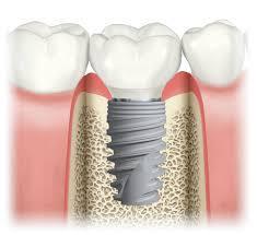 implante com enxerto ósseo