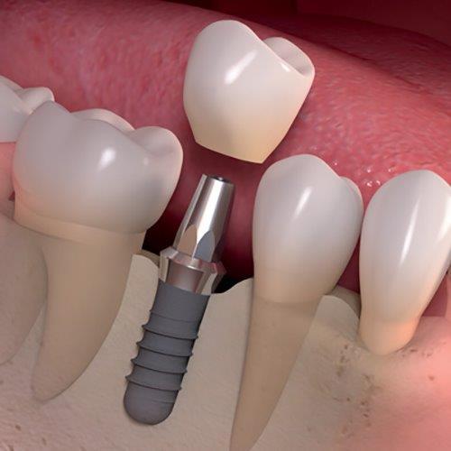 Implante dentário: preço médio
