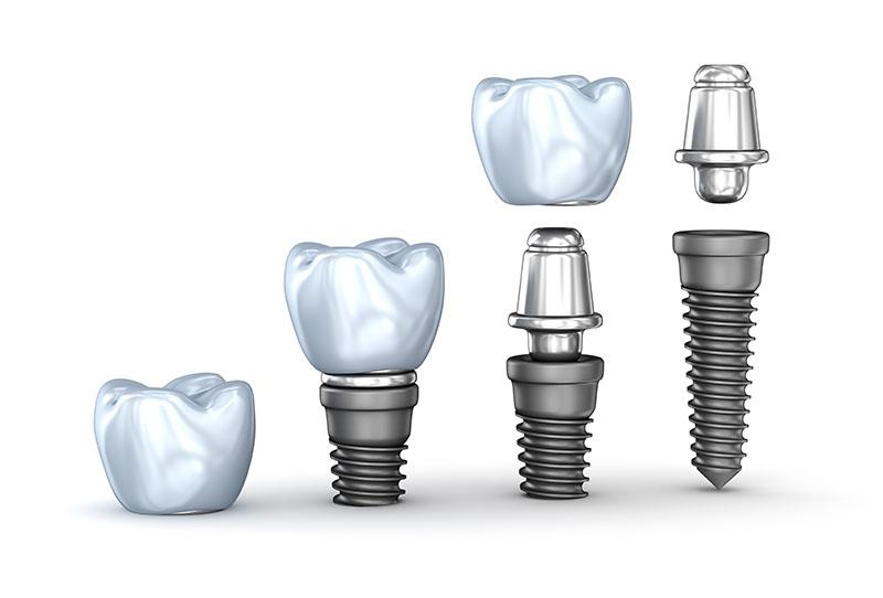 implante dentário protocolo superior