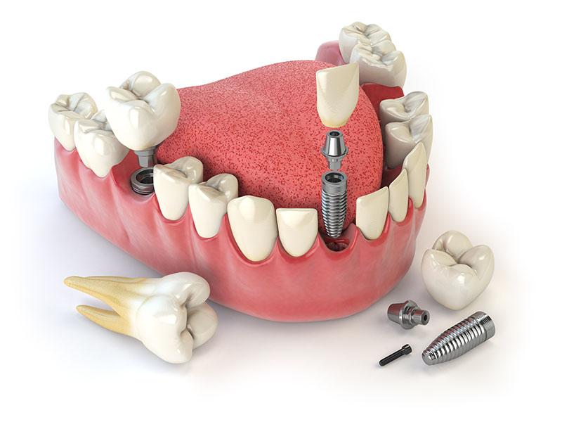 Implante dentário quanto custa