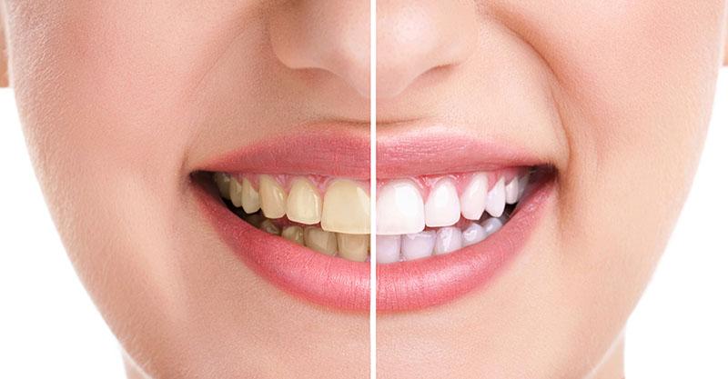 Limpeza dos dentes