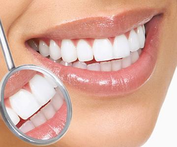 limpeza dos dentes em casa