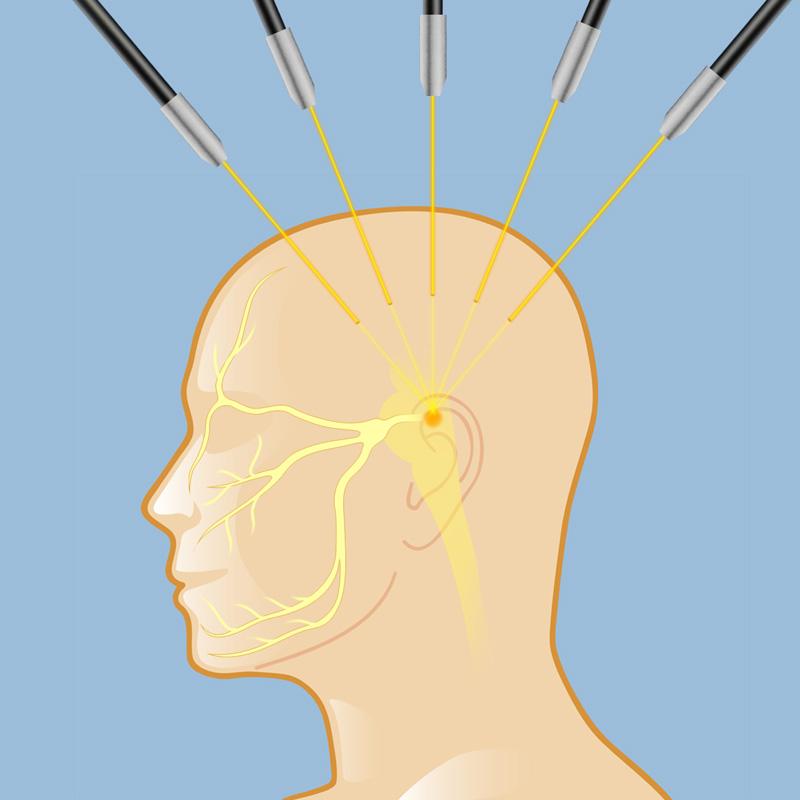 neuralgia do trigêmeo cirurgia
