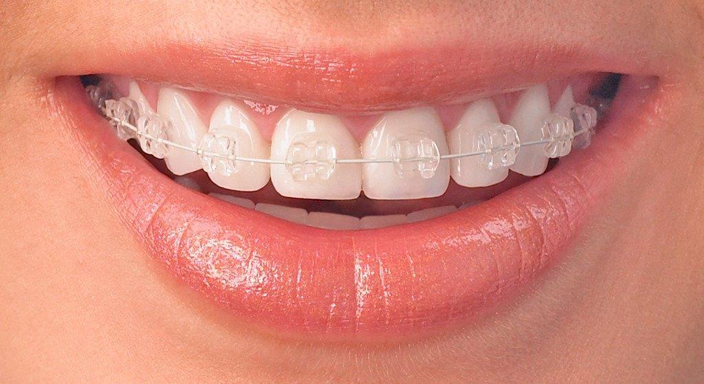 ortodontia aparelho fixo