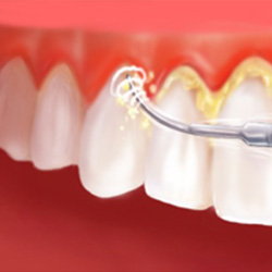 periodontite tratamento preço