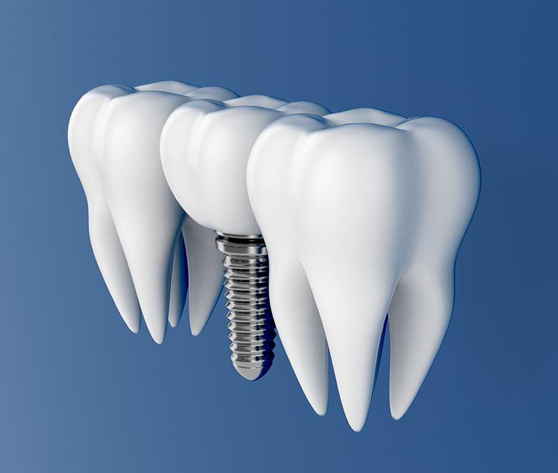 prótese dentaria de porcelana