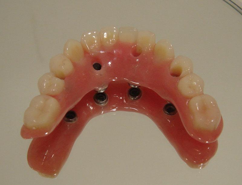 prótese protocolo sobre implante